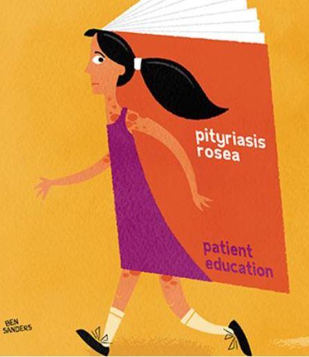 Pityriasis